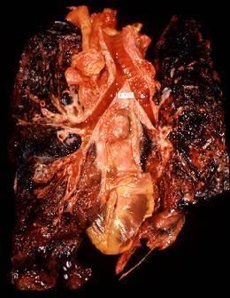 poumon_cancertabac